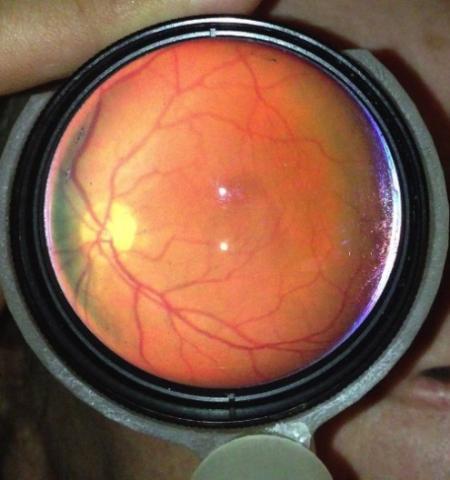 可检查眼睛健康的iPhone附件创意设计