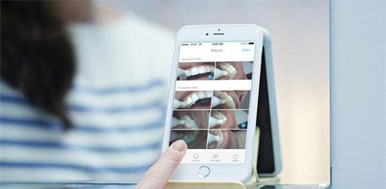 Prophix智能牙刷创意设计:可连接手机看清楚每一颗牙齿